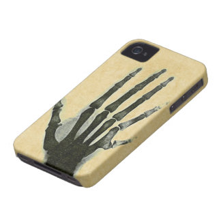 X-Ray Hand with Extra Finger Case-Mate Case iPhone 4 Case-Mate Case