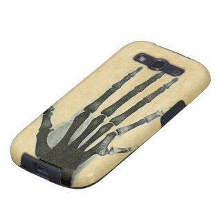 X-Ray Hand with Extra Finger Case-Mate Case Galaxy S3 Cases