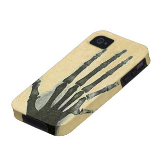 X-Ray Hand with Extra Finger Case-Mate Case iPhone 4/4S Case