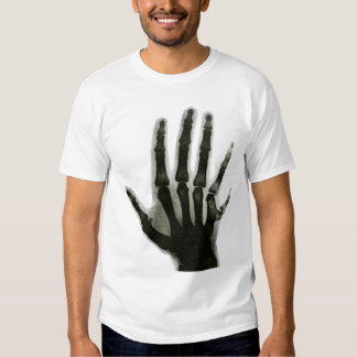 X-Ray Hand with Extra Finger Shirt