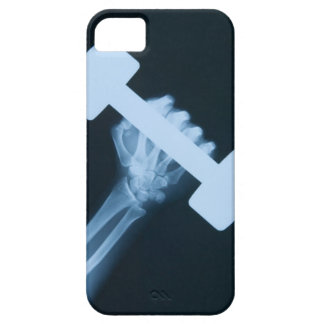 X-ray image of human hand with weight, close-up iPhone SE/5/5s case