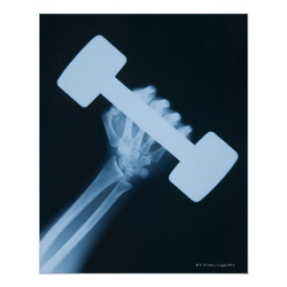 X-ray image of human hand with weight, close-up poster