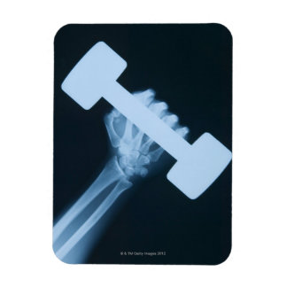 X-ray image of human hand with weight, close-up vinyl magnets