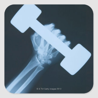 X-ray image of human hand with weight, close-up square sticker