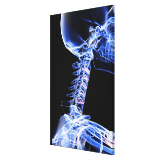 X-ray image of the bones of the neck canvas print