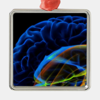 X-ray image of the brain christmas tree ornaments