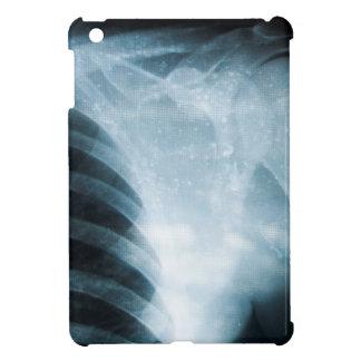 X-ray iPad Mini Case