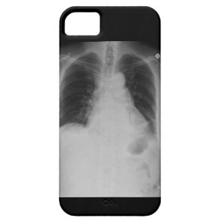 X Ray ~ iPhone 5 CaseMate case