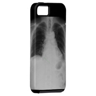 X Ray ~ iPhone 5 CaseMate Vibe iPhone SE/5/5s Case