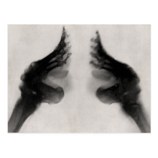 X-Ray of Bound Feet Postcard