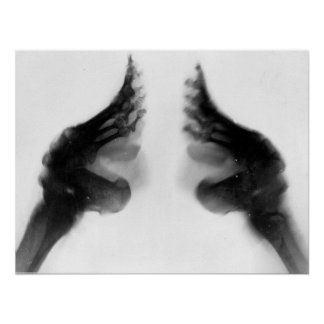 X-Ray of Bound Feet Poster