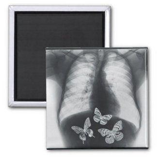 X-ray of butterflies in the stomach 2 inch square magnet