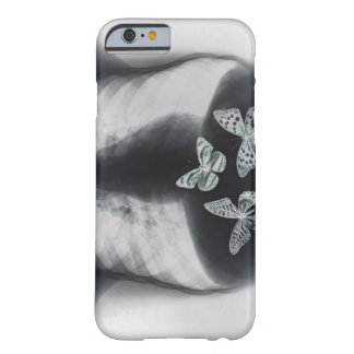 X-ray of butterflies in the stomach barely there iPhone 6 case
