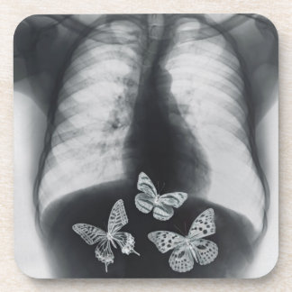 X-ray of butterflies in the stomach beverage coaster