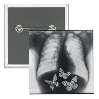 X-ray of butterflies in the stomach button