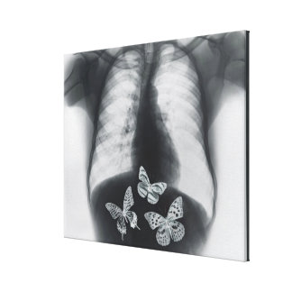 X-ray of butterflies in the stomach canvas print
