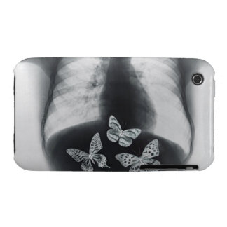 X-ray of butterflies in the stomach Case-Mate iPhone 3 case
