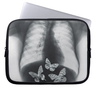 X-ray of butterflies in the stomach computer sleeves