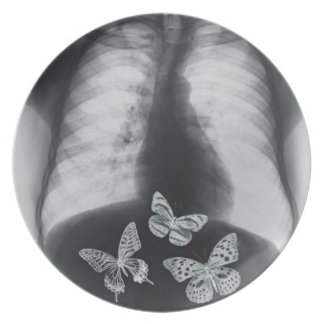 X-ray of butterflies in the stomach dinner plate