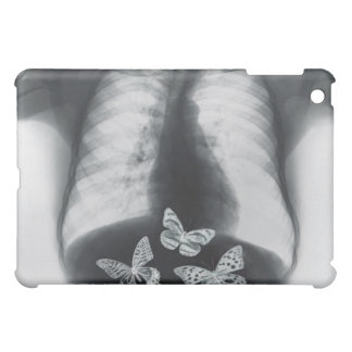 X-ray of butterflies in the stomach iPad mini cover