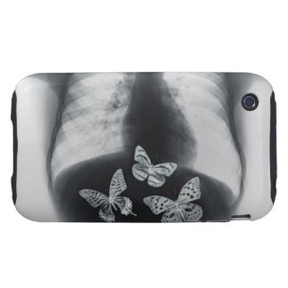 X-ray of butterflies in the stomach iPhone 3 tough covers