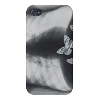 X-ray of butterflies in the stomach iPhone 4/4S covers