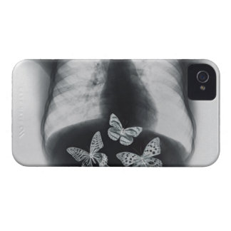 X-ray of butterflies in the stomach iPhone 4 Case-Mate case