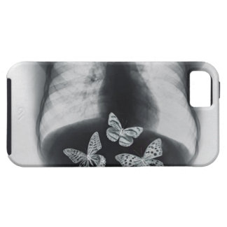 X-ray of butterflies in the stomach iPhone SE/5/5s case