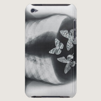 X-ray of butterflies in the stomach iPod Case-Mate case