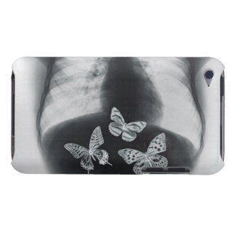 X-ray of butterflies in the stomach iPod touch case