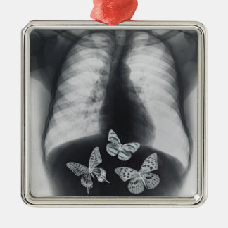 X-ray of butterflies in the stomach metal ornament