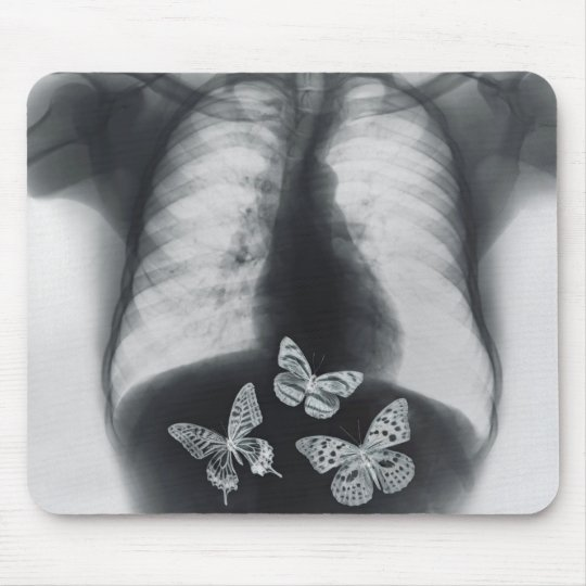 X-ray of butterflies in the stomach mouse pad
