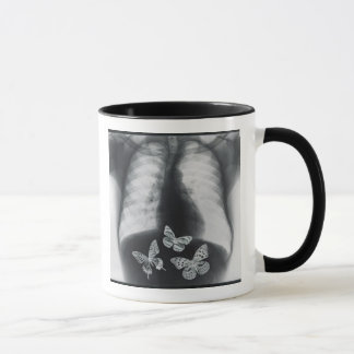 X-ray of butterflies in the stomach mug