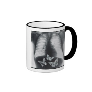 X-ray of butterflies in the stomach coffee mug