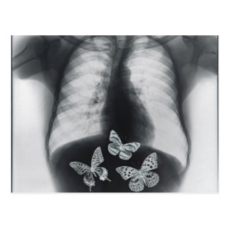 X-ray of butterflies in the stomach postcard