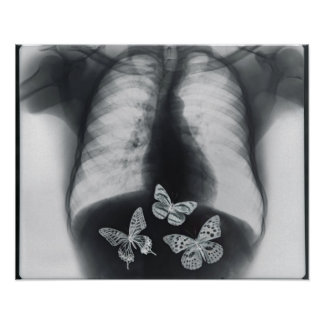 X-ray of butterflies in the stomach poster