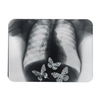 X-ray of butterflies in the stomach rectangular photo magnet