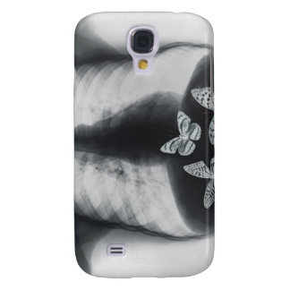 X-ray of butterflies in the stomach samsung galaxy s4 cover