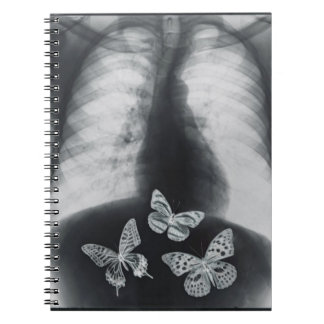 X-ray of butterflies in the stomach spiral notebook