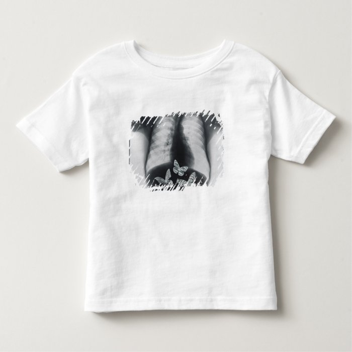 X-ray of butterflies in the stomach toddler t-shirt