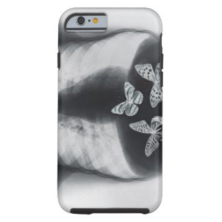 X-ray of butterflies in the stomach tough iPhone 6 case