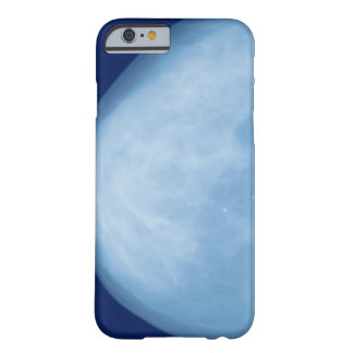 X-ray of female breast, side view barely there iPhone 6 case