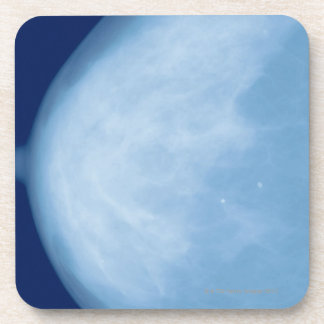 X-ray of female breast, side view beverage coasters