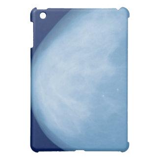 X-ray of female breast, side view iPad mini covers