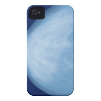 X-ray of female breast, side view iPhone 4 Case-Mate case