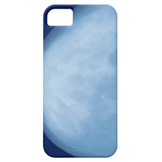 X-ray of female breast, side view iPhone SE/5/5s case