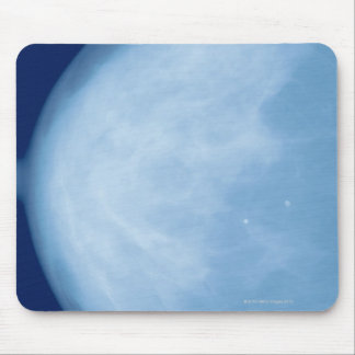 X-ray of female breast, side view mouse pad