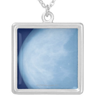 X-ray of female breast, side view square pendant necklace