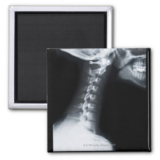 X ray of neck vertebrae including lower jaw magnet