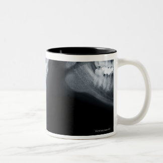X ray of neck vertebrae including lower jaw Two-Tone coffee mug